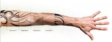 gradual tattoo removal
