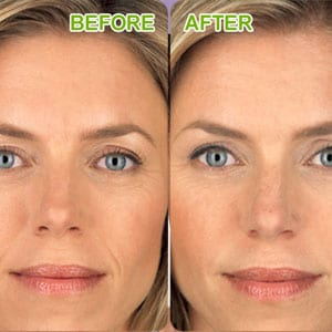 botox before and after woman