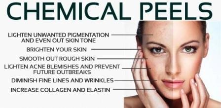 checmical peels improve the appearance of your skin.