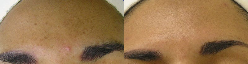 Hydrafacial-sun-damage