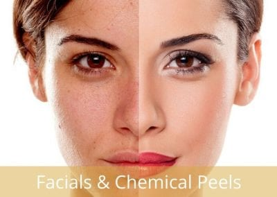Chemical Peels & Facials