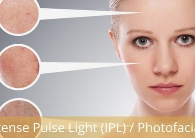 Intense Pulse Light (IPL) / Photofacials