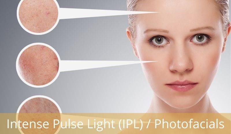 Intense pulse light photo facial