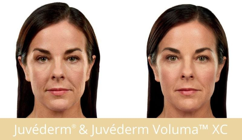 JUVEDERM VOLUMA™ XC - Look Younger Instantly!