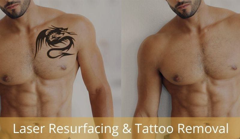 coolsculpting sacramento,laser hair removal clinics near me,laser tattoo removal near me