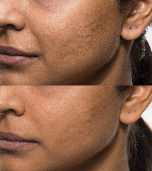 Bellafil Filler For Acne Scars