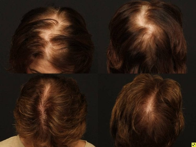 NeoGraft hair restoration results for a female patient
